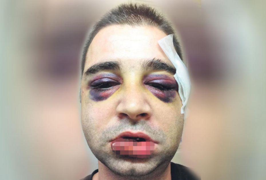 STRAVIČAN NAPAD U CENTRU NOVOG SADA: Mladić brutalno prebijen ispred noćnog kluba