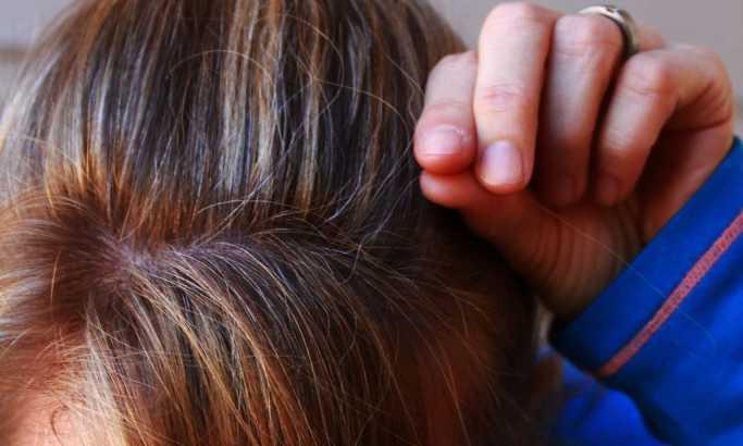 Seda kosa može biti znak zdravstvenih problema