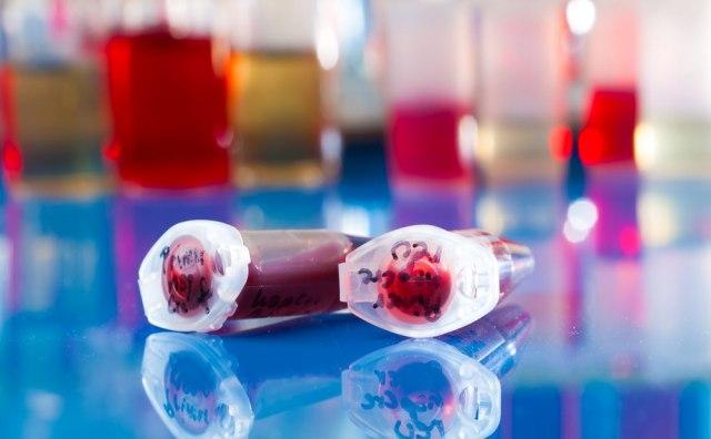 Slučaj matičnih ćelija: Tražićemo podatke o uzorcima pacijenata