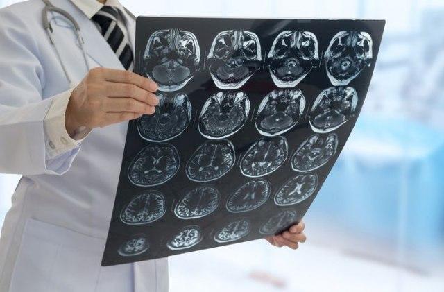 Šta se dešava u mozgu osobe koja preživi traumu?