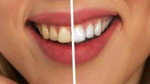 Šta zubni kamenac otkriva o navikama drevnih ljudi