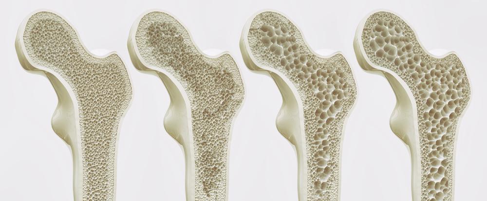 Svetski dan borbe protiv osteoporoze: U Srbiji 600.000 ljudi boluje od ove bolesti