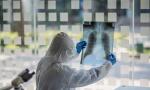 Teške posledice korone su retke, ali treba biti oprezan: Nemački pulmolog o TRAJNIM POSLEDICAMA virusa COVID 19