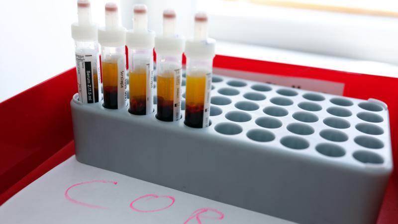 U Crnoj Gori 16 novih slučajeva inficiranih korona virusom, ukupno 160