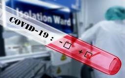 U Srbiji još jedna osoba umrla od koronavirusa, još 48 zaraženih