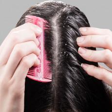 U čašu mlake vode DODAJTE OVAJ SASTOJAK iz vaše kuhinje i operite kosu: Rešite se PERUTI jednom za svagda!