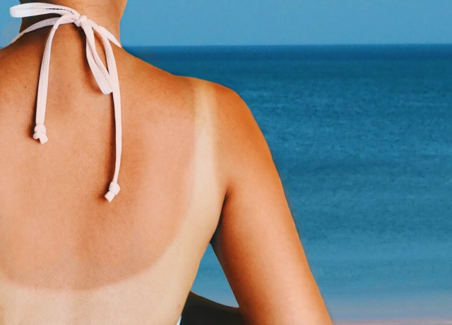 U slučaju opekotina od sunca ovako treba da tretirate kožu