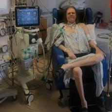 UMRO ČOVEK KOJI JE 14 MESECI IMAO KORONU: Samo 15 dana bio bez respiratora, virus mu uništio pluća i bubrege! (FOTO/VIDEO)