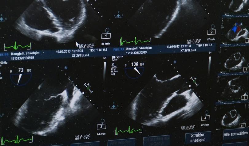 Ultrazvuk Beograd: TOP 10 mesta za ultrazvuk i 4D ultrazvuk u Beogradu