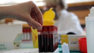Vanredna akcija davanja krvi u Novom Sadu danas od 10 do 15 časova