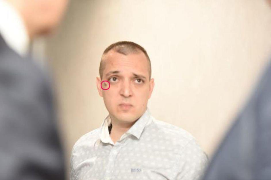 ZORAN MARJANOVIĆ POSLAO ŠIFROVANU PORUKU: Svi su gledali šta to ima ispod oka muž ubijene pevačice, a onda se OTKRILA JEZIVA SIMBOLIKA ZNAKA! (FOTO)