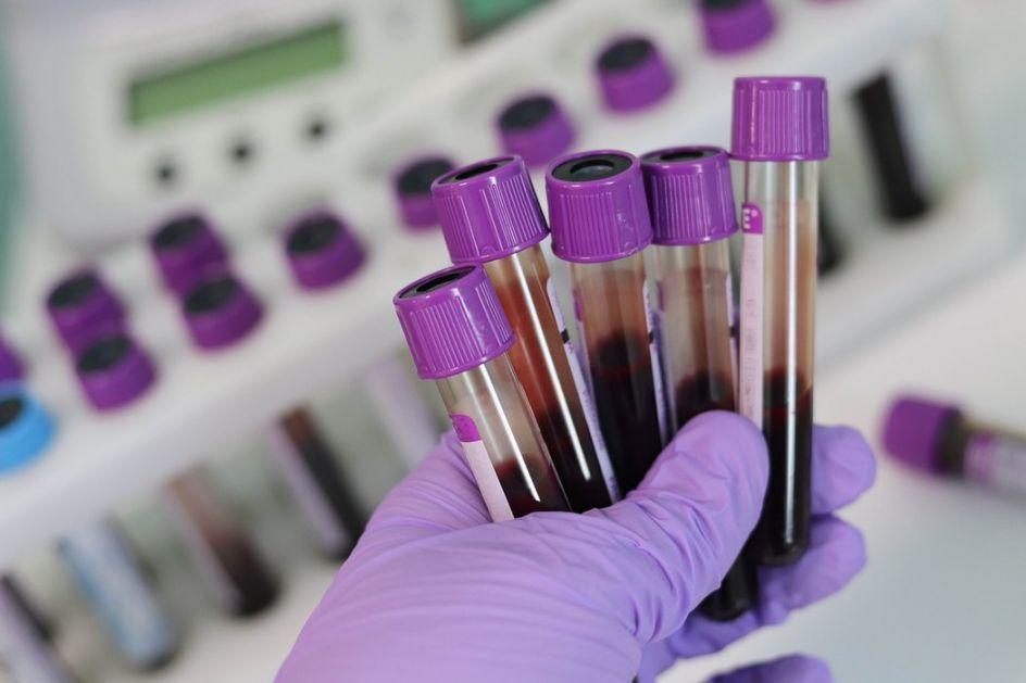 Za desetak dana plazma terapija i u Srbiji – lečenje krvlju izlečenih od korone
