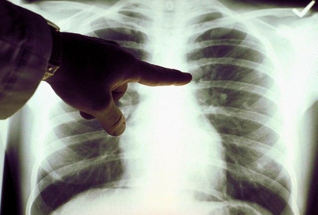 Za ove namirnice studije ukazuju da smanjuju rizik od razvoja raka pluća
