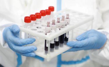 AKTUELNO: Sve teža situacija sa koronavirusom, nove mere