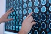 Da li stimulacija mozga pomaže osobama sa demencijom?