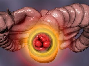Hemoroidalna bolest