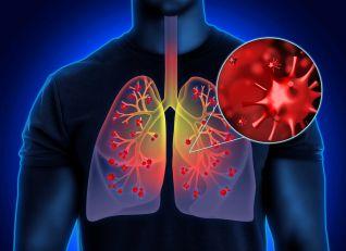 """Kako da prepoznate da se virus """"spušta"""" na pluća i kada je vreme da uradite rendgen?"""