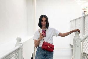 Novi TREND koji je zaludeo Instagram zbog kojeg sada sve žene izgledaju kao ŽIRAFE (FOTO)