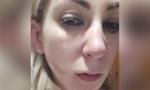 UZNEMIRUJUĆE: Nadežda sva krvava nakon što ju je Toma pretukao (FOTO/VIDEO)